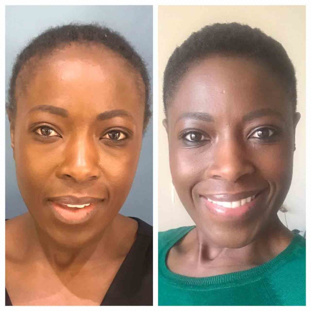 Thandeka's Before And After Hair Restoration