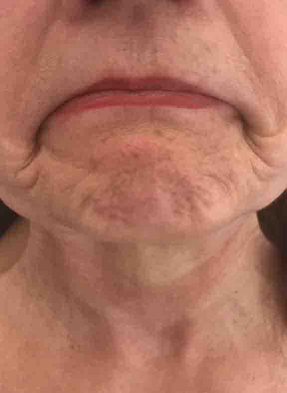 Botox Mouth 2