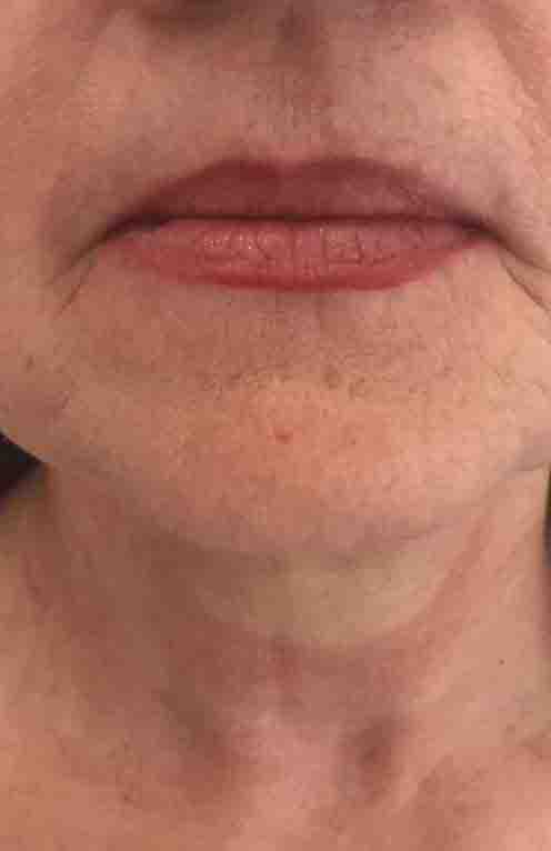 Botox Mouth1